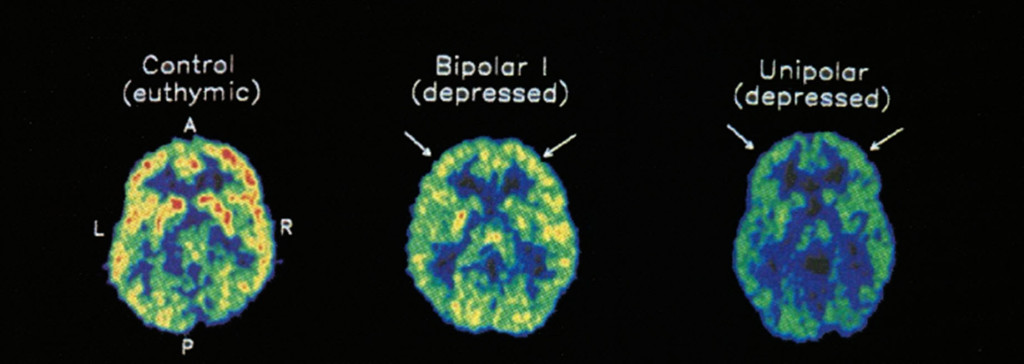"""PET scan taken of a healthy person (control), a bipolar depressed patient (incl phases of mania) and a depressed patient during performance tasks. Red/yellow areas show increased brain activity through measurement of glucose uptake. Source: Ketter et al (2)."" From: Christine Webber"
